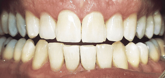 Teeth Whitening Aging After