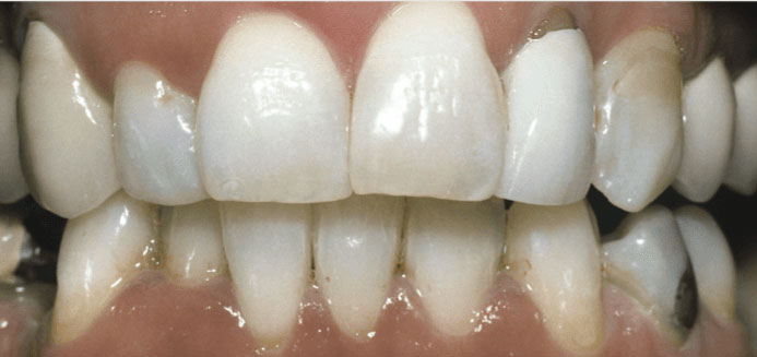 Teeth Whitening Smoking After