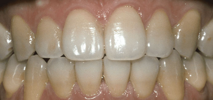 Tetracycline Before