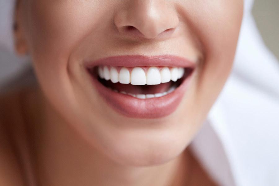 Porcelain Veneers Cosmetic Dentistry