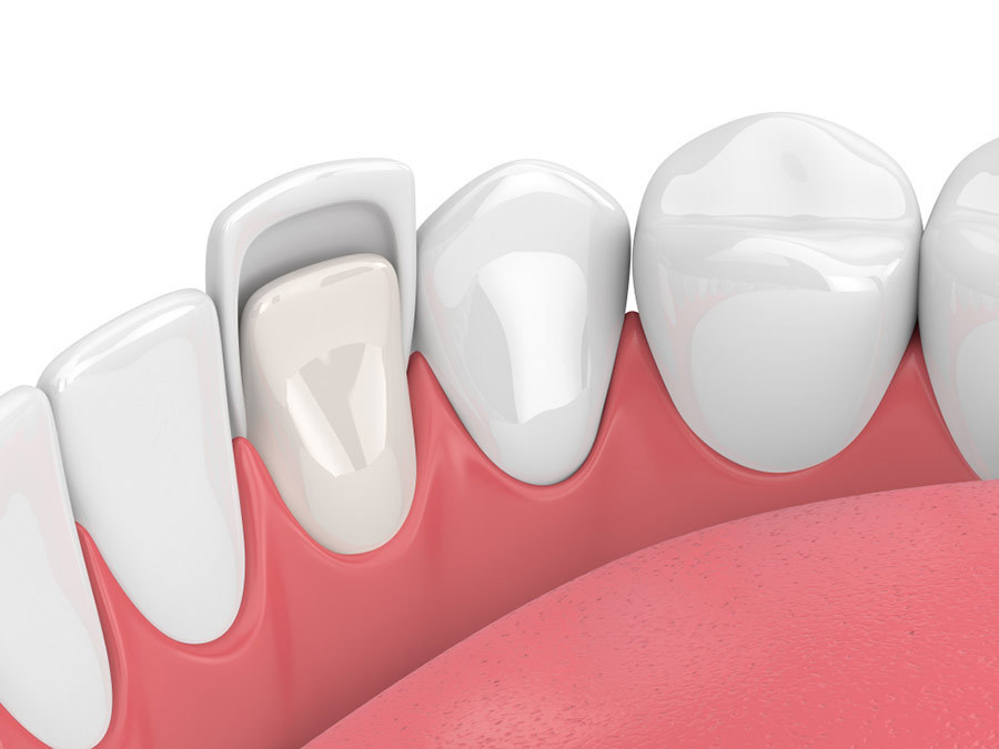 Porcelain Veneers Hills Dental Care